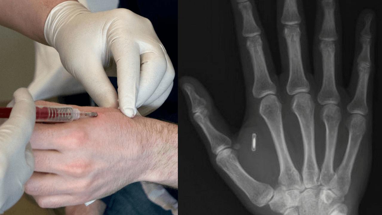 microchip implant via mintpress news